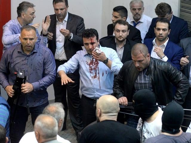 Окървавеното лице на Зоран Заев бе по всички телевизионни екрани в четвъртък вечер. Най-отзад в бяла риза е Талат Джафери. Снимка: Anadolu Agency