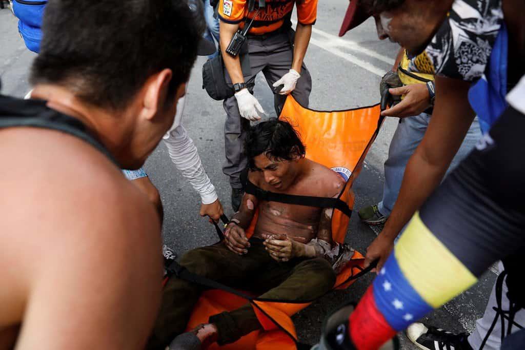 """Този младеж е обгорял при възпламеняването на """"коктейл Молотов"""", който се опитвал да хвърли по полицията. Снимка: albaciudad"""
