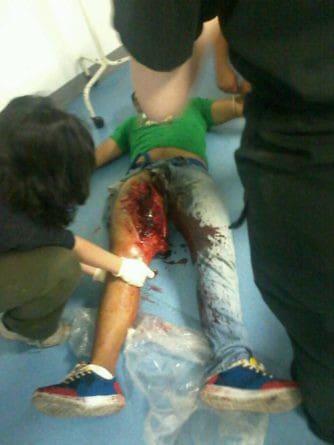 Най-тежко раненият на 5 юли в Националното събрание е 19-годишният Криситан Палма. Снимка: Resumen Latinoamericano