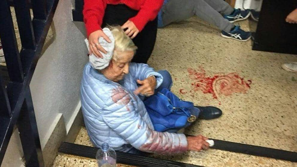 Главата на възрастна жена бе окървавена при полицейската акция в нейната секция. Снимка: Туитър