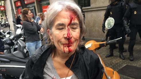 Окървавеният лик на тази жена, получила удар с полицейска палка на излизане от нейната изборна секция, обиколи световните медии. Снимка: La Vanguardia