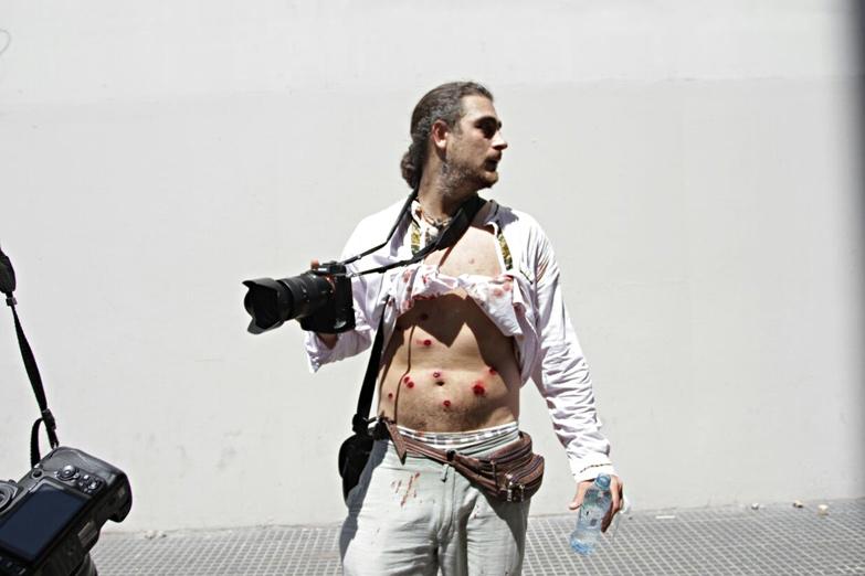 Фотограф от изданието Pagina 12 се оказа сред ранените от гумените куршуми на аржентинската полиция. Снимка: Resumen Latinoamericano