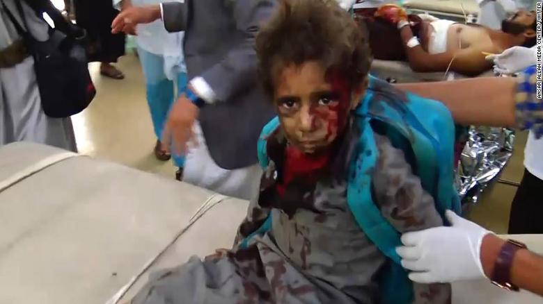 Едно от децата, оцеляло от саудитския ракетен удар по училищен автобус в Йемен
