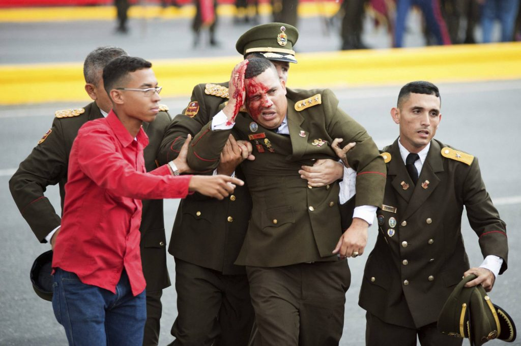 Един от седмината ранени при атентата военни. Снимка: Синхуа