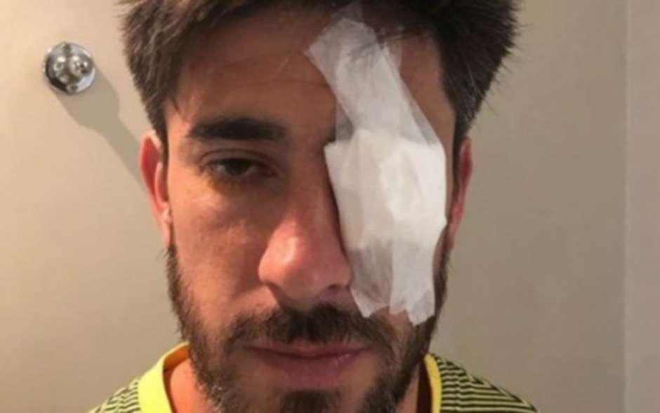 """Раненият в окото при нападението капитан на """"Бока Хуниорс"""" Пабло Перес. Снимка: Туитър"""