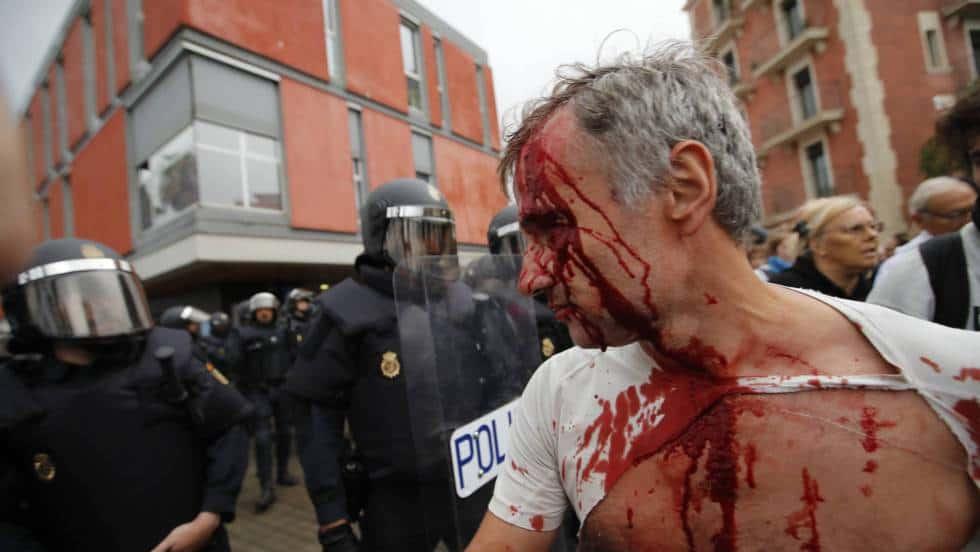Над 400 души пострадаха при полицейските деййствия срещу хората, които се опитваха мирно да противостоят на конфискуването на изборните материали за непризнатото от Мадрид допитване. Снимка: El Pais