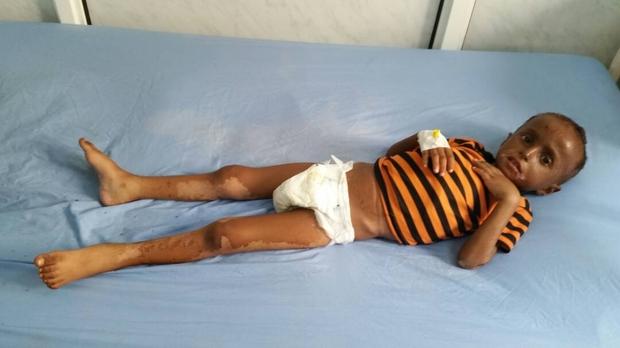 Шестгодишният Мохамад Саад се лекува в една от болниците на Ходейда заради недохранване. Липсата на гориво обаче създава риск и за малкото помощ, която може да се окаже на деца в неговото положение. Снимка: middleeasteye.net